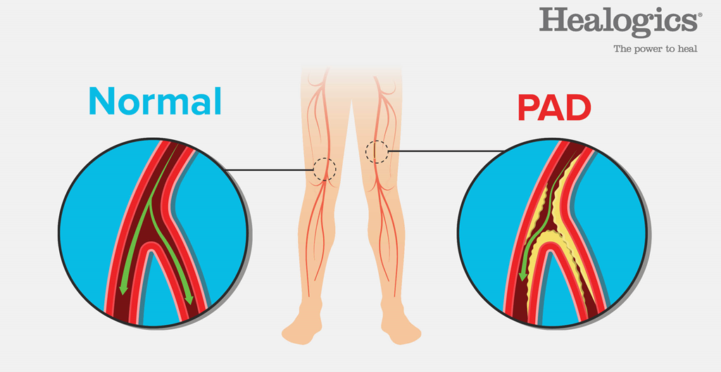 Illustration showing difference between a normal artery and an artery from a person who has PAD